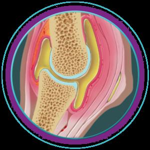 Stammzellentherapie beim Pferd: entzuendetes-gelenk